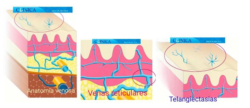 Anatomía de las varices