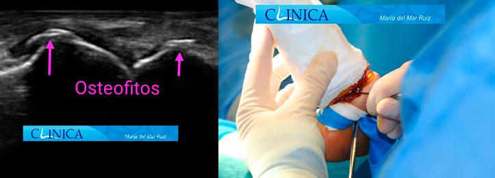 Ecografía mostrando la exóstosis: cirugía ecoguiada con incisión 1mm