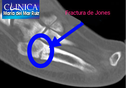 Resonancia magnética: Fractura de Jones