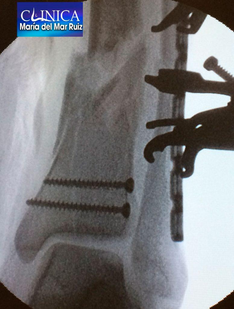 Osteosíntesis para fractura de tobillo
