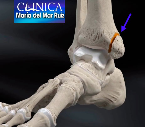 Fijación en fractura de tibia (Arthrex)