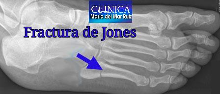 Fractura de Jones