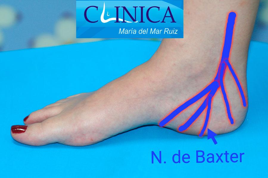 El dolor en el talón suele diagnosticarse como fascitis plantar, pero la compresión de la primera rama calcánea o nervio de Baxter