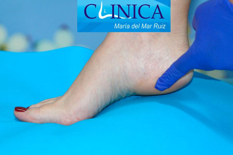Neuropatía o síndrome de Baxter   Clínica María del Mar Ruiz