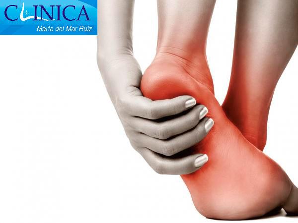 El dolor puede estar localizado en el talón o irradiar a la planta con la fascitis plantar