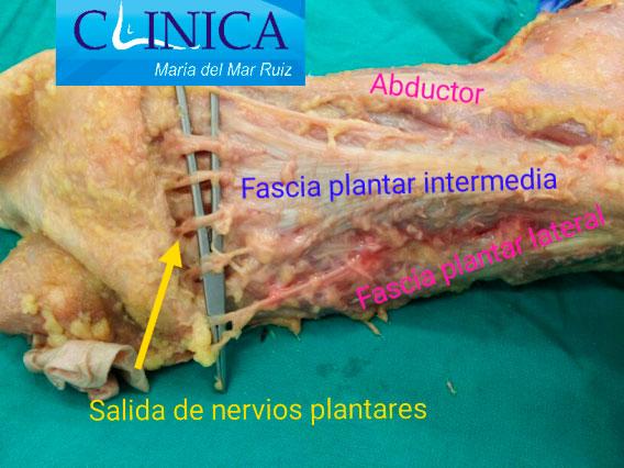 Fascia plantar y estructuras nerviosas distales