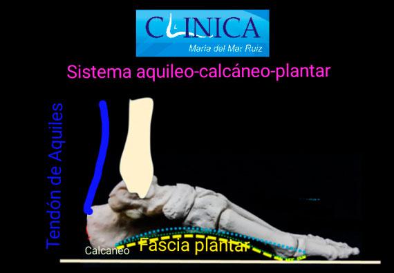 Tracción del sistema Aquíleo-calcáneo-plantar