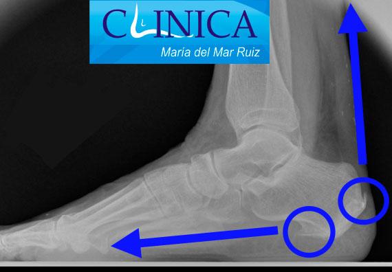 Espolón plantar y posterior, debidos a la tracción de la fascia plantar y el tendón de Aquiles