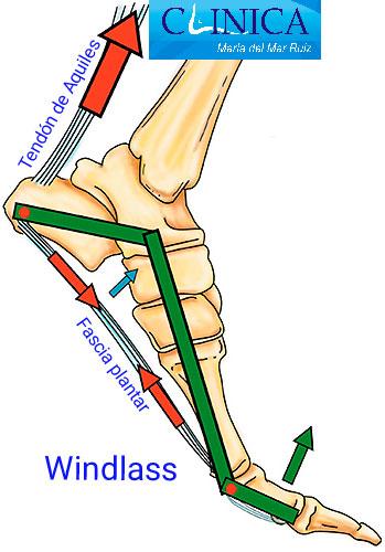 Mecanismo de Windlass en el pie