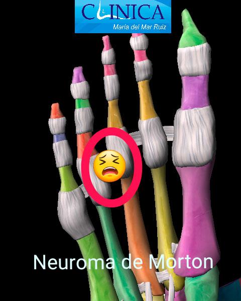 Neuroma-de-Morton-y-Neuroma-Interdigital-1