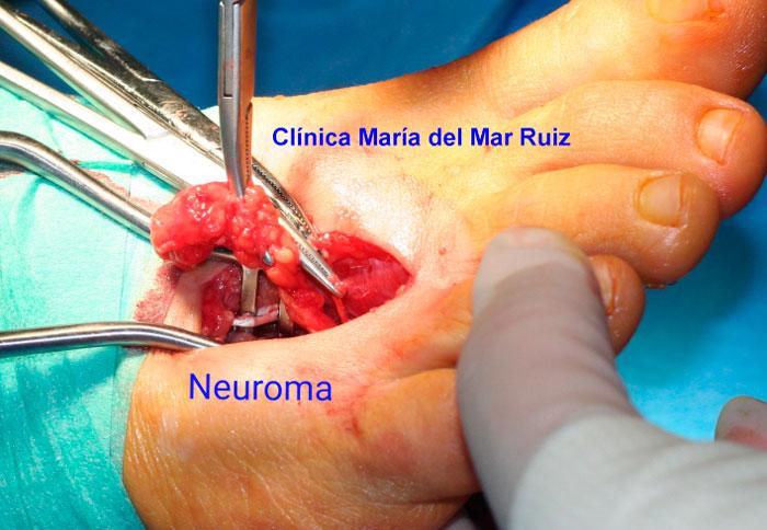 Incisión dorsal para extraer un neuroma de dimensiones enormes causante de dolor