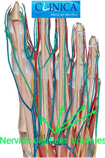 Nervios digitales dorsales y plantares: los neuromas son más habituales en los plantares, en especial en el 3º interespacio