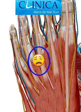 Neuroma-de-Morton-y-Neuroma-Interdigital