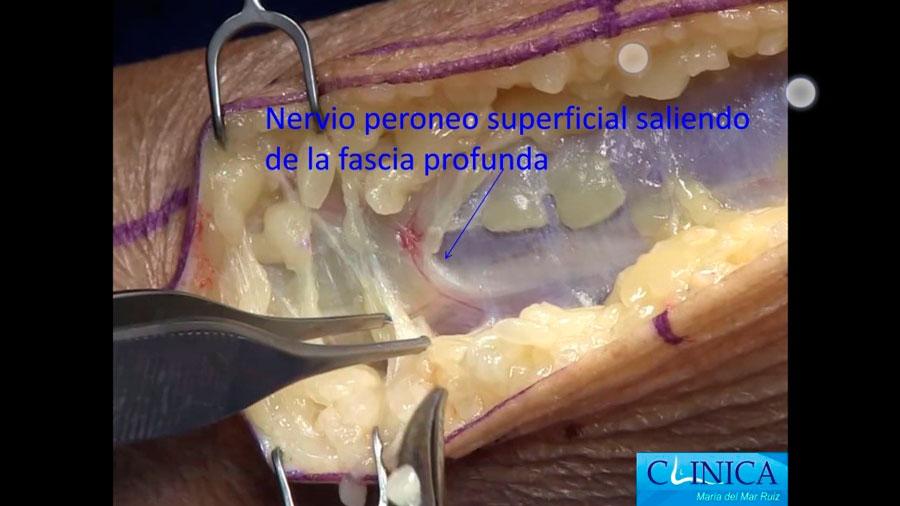 Liberación de un atrapamiento del nervio peroneo superficial a nivel proximal