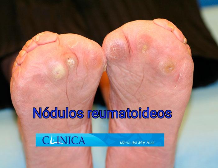 Las enfermedades reumáticas provocan metatarsalgias severas que pueden corregirse definitivamente