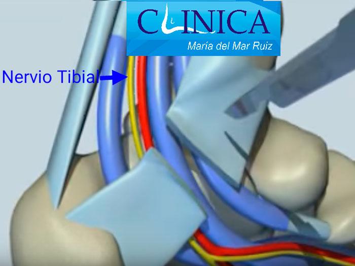 Síndrome del Túnel Tarsiano | Clínica María del Mar Ruiz