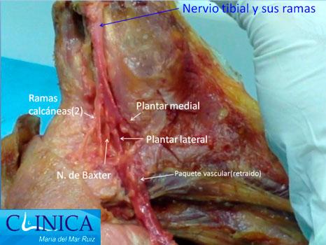 Localización de las ramas del nervio tibial posterior