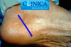 Incisión habitual cirugía síndrome del tarso