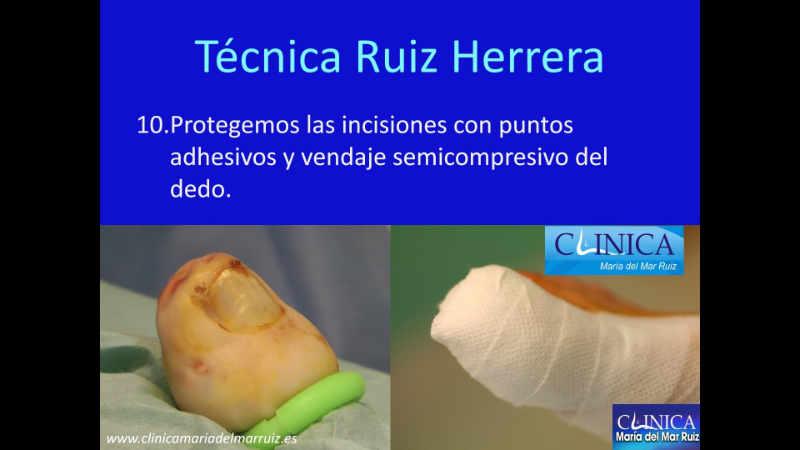 Nueva técnica ruiz herrera para la onicocriptosis o uña involuta podología