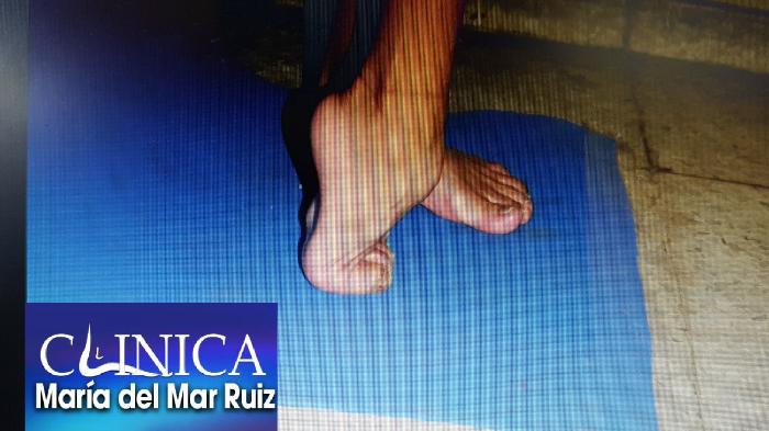 El pie equino cuando es debido a una parálisis presenta una deformidad grave en flexión plantar