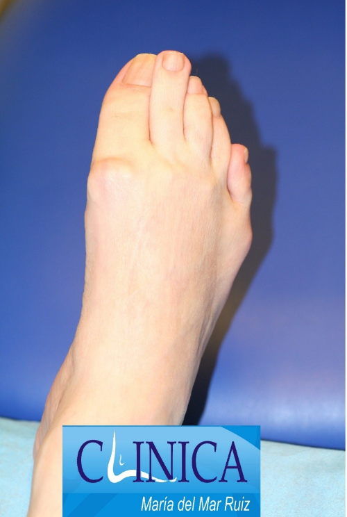 Pie equino por parálisis fláccida, secuela de poliomielitis