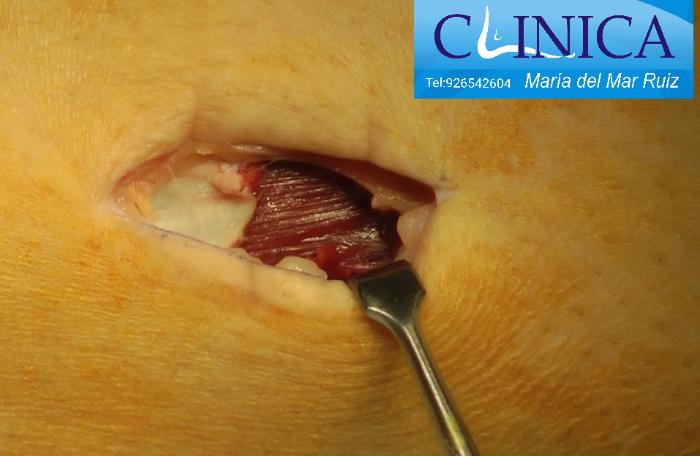 Cirugía abierta en la pantorrilla para alargar los gemelos