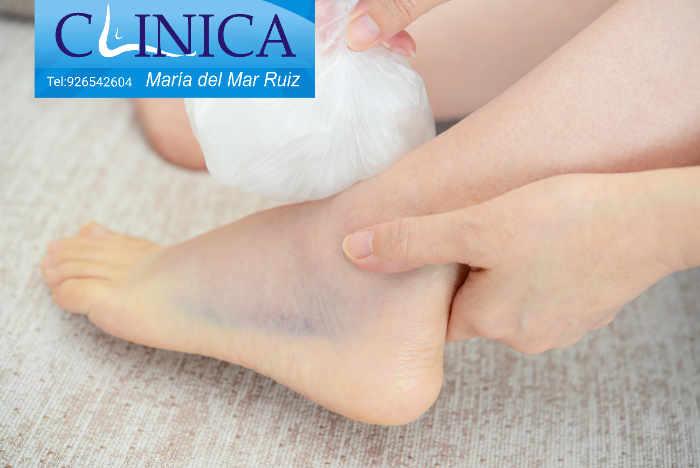 Dolor, edema, hematoma e impotencia funcional suelen acompañar a los esguinces de tobillo
