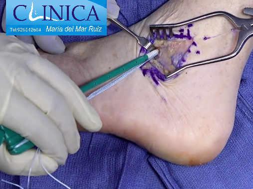 Refuerzo con sutura de anclaje de los ligamentos dañados en el esguince de tobillo