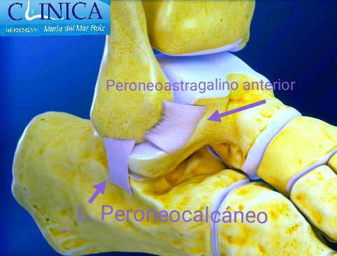 El ligamento peroneoastraglino anterior es el que más se lesiona en los esguinces de tobillo