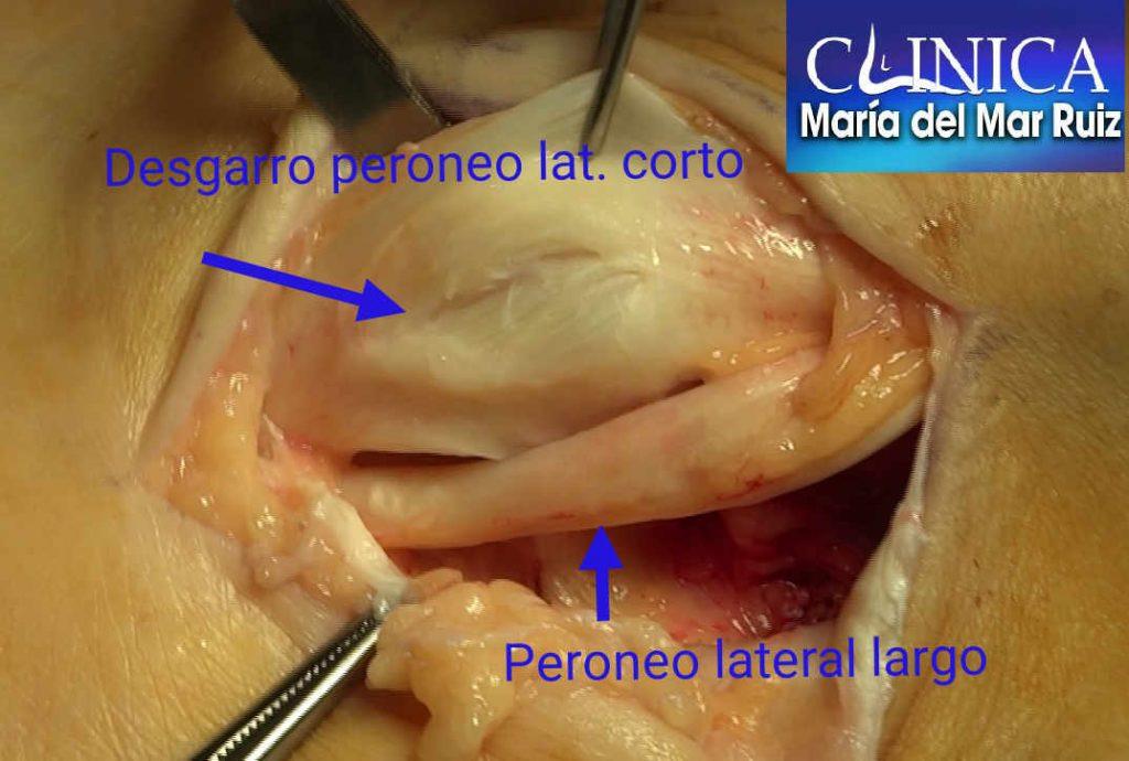 Desgarros del peroneo lateral corto