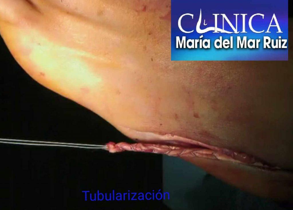 Reparación quirúrgica del tendón mediante tubularización