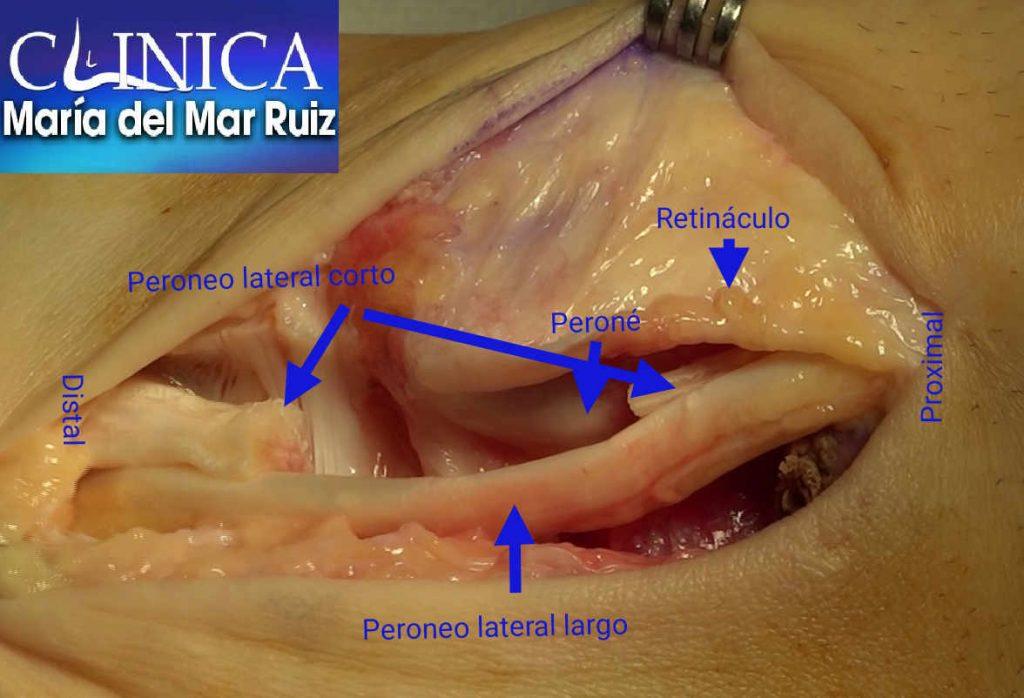 Preparación previa a la tenodesis tras limpieza del peroneo lateral corto