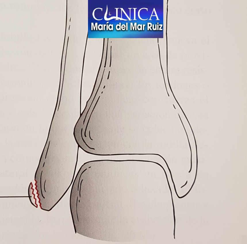 La avulsión o fractura del peroné puede acompañar a la lesión en los peroneos