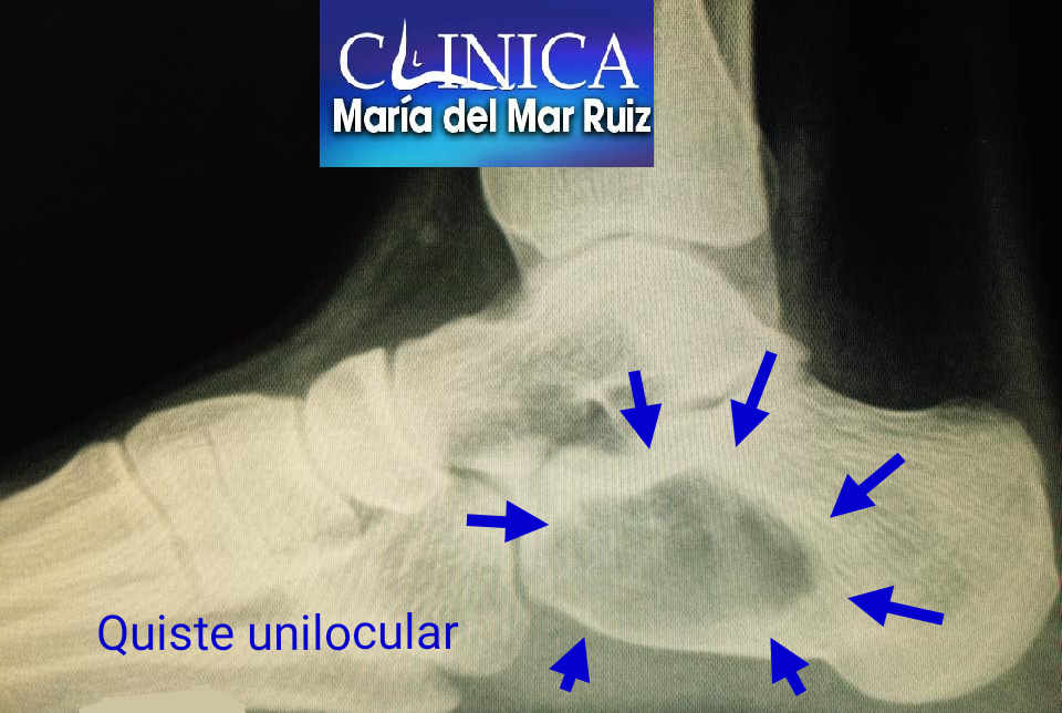 Radiografía lateral en la que vemos un quiste unilocular de calcáneo