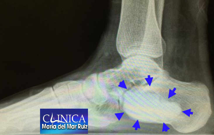 Quiste óseo aneurismático: radiografía pre y posquirúrgica con curetaje y relleno
