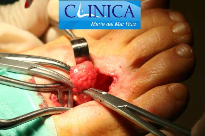 Los tumores en el pie y tobillo, en concreto los malignos primarios, de partes blandas o de hueso son poco frecuentes