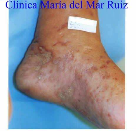 Sarcoma de Kaposi (Tumores Óseos y de partes blandas del tobillo y pie) antes y después de tratamiento con Flores de Bach.