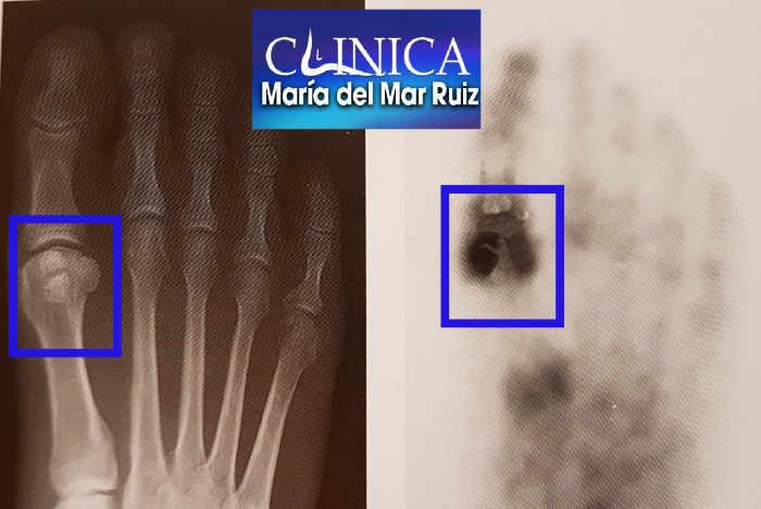 La Radiografía y la Gammagrafía son pruebas de imagen para valorar los tumores en pie y tobillo