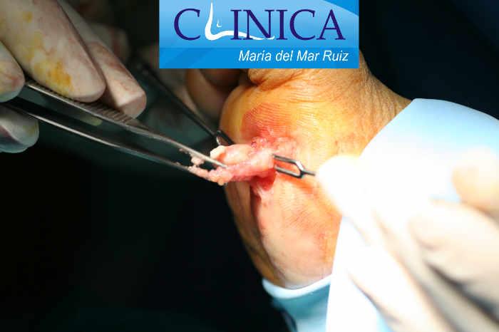Biopsia de tumores oseos y de partes blandas de pie y tobillo por escisión: secuencia intraoperatoria de los pasos quirúrgicos para su extirpación