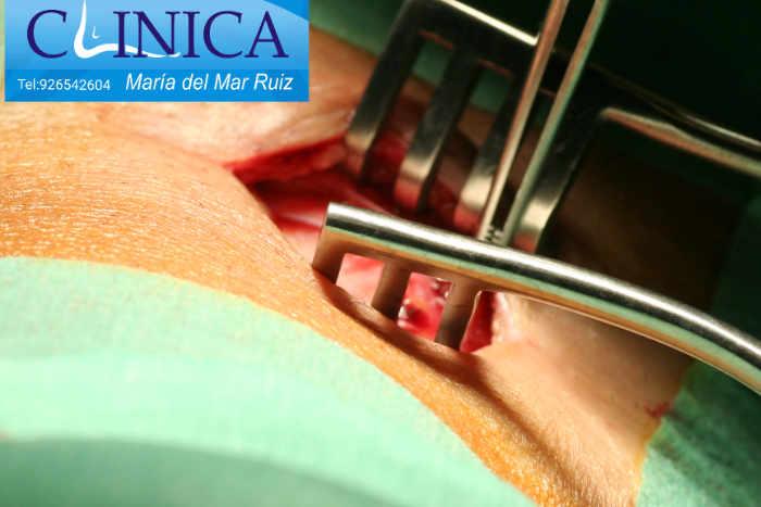Cirugía abierta de alargamiento gemelar en el hueco poplíteo