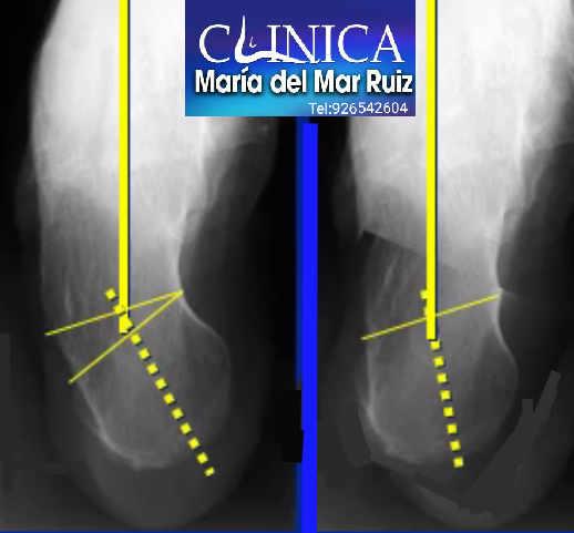 Osteotomía de Dwyer para tratar un pie cavo