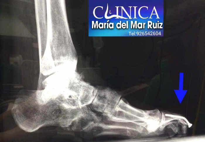 Paciente intervenido de pie cavo con Ataxia de Friedreich: la deformidad que es progresiva tiene tal fuerza muscular que ha doblado el tornillo colocado 4 años antes