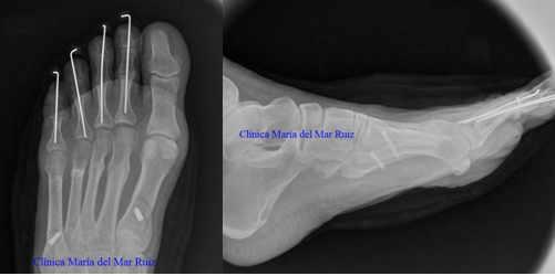 Radiografías intraoperatorias: osteotomías dorsiflexoras y corrección de dedos en martillo