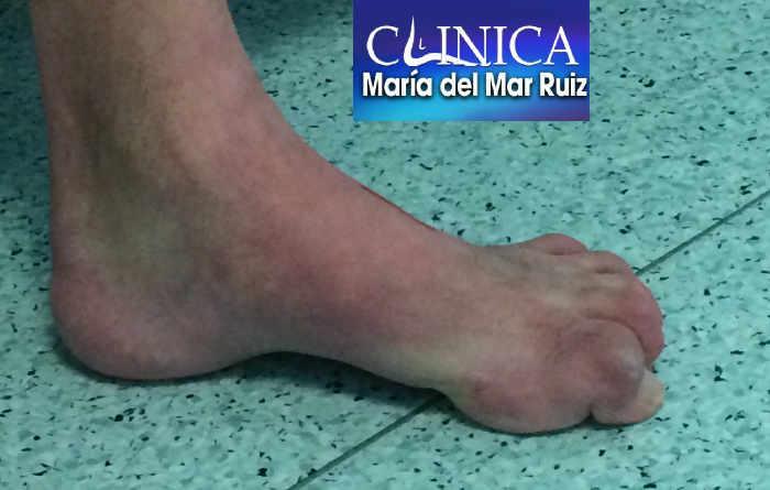 Pie cavo con dedos en martillo y garra por enfermedad de Charcot-Marie-Tooth