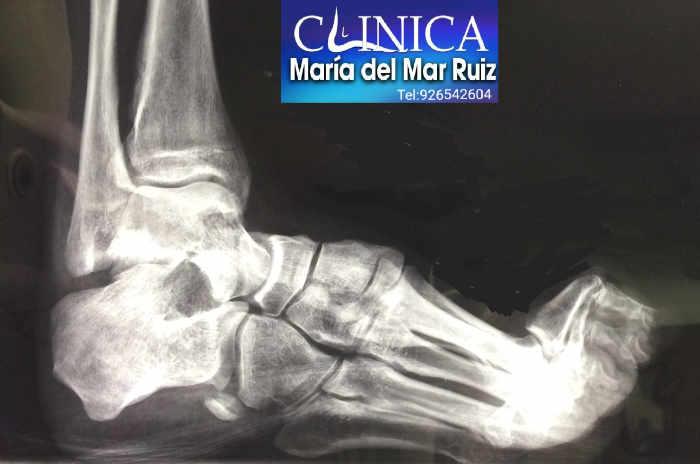 Radiografía lateral en un pie cavo