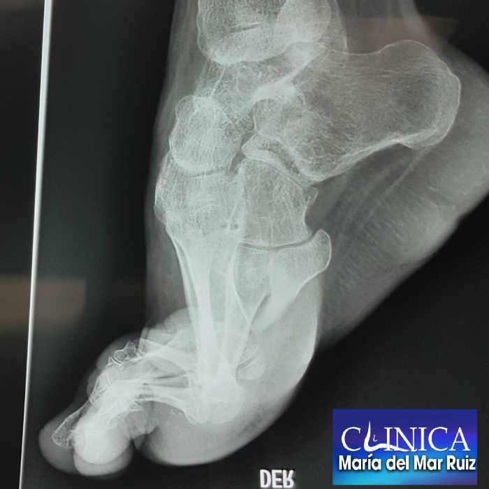 Pie cavo con retracción del tendón de Aquiles, causante de pie equino