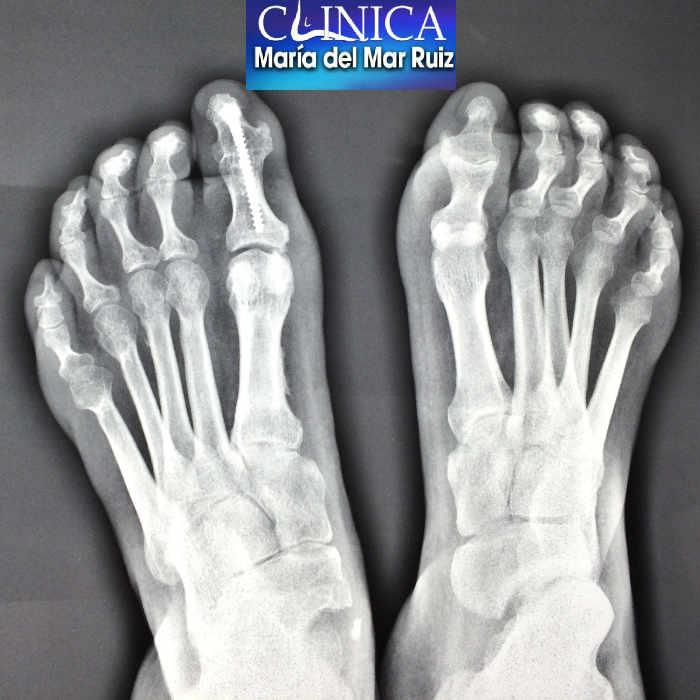 Radiografía de paciente con pie cavo afectado de la enfermedad de Charcot-Marie-Tooth