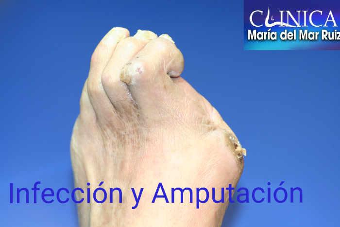El pie diabético debe revisarse periódicamente. Una herida infectada puede terminar en la temida amputación.