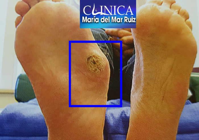 Úlcera en un pie de Charcot por hundimiento del mediopié