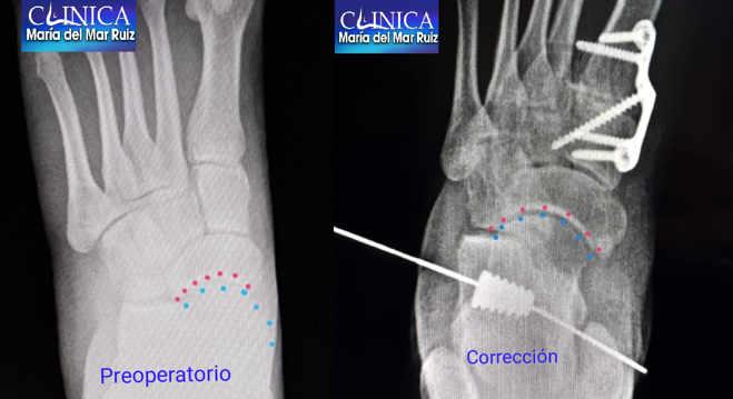 Radiografías pre y posquirúrgicas en la corrección del pie plano del adulto: vemos la alineación articular después de la cirugía (imagen intraoperatoria).